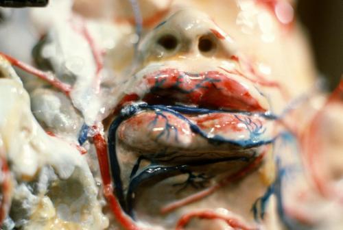 4 | Psychogenes, anatomisches Modell,(Tumor),1984 (Detail)